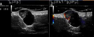 Ultrasound study of the lesion. A,Oval, anechoic, dermal-hypodermal lesion with a triangular hyperechogenic area that protrudes through the wall (asterisk). B,Increased flow at the peripheral level and in the solid triangular portion (Doppler mode).