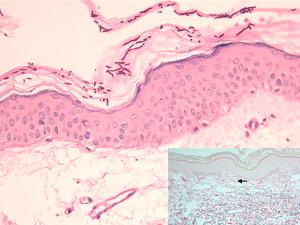 Epidermis with abundant hyphae and spores in the stratum corneum and flattening of the rete ridges (periodic acid–Schiff, original magnification ×200). The inset shows diminished fine elastic fibers in the papillary dermis (arrow) and fragmented elastic fibers in the superficial reticular dermis, as well as vascular ectasia (orcein stain, original magnification ×100).