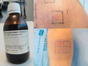 A, Neem oil.B, Patch test results at 96h for neem oil (+++). C, Patch test results at 96h for dilutions at 25% and 50%.