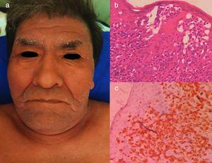 Chronic ATLL. a) 66yo male with erythroderma and severe xerosis for over 3 years. (b) Epidermotropism and Pautriers microabscess. Hematoxylin and Eosin stain, x40. (c) Immunohistochemistry CD3+, x40. The patient died after 8 months of chemotherapy with gemcitabine (1000mg/m2 per day) and oxaliplatin (100mg/m2 per day) every 3 weeks.