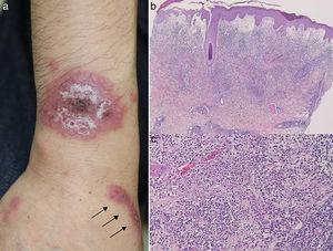 (a) Round, infiltrative erythema with superficial small pustules, and infiltrative linear erythema (arrow) on the forearm. (b, c) Histological features showing prominent edema in the papillary dermis and intense neutrophil infiltration in the upper to mid-dermis. (original magnification; a: ×40, b: ×200).