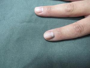 Clinical appearance: longitudinal melanonychia with periungual pigmentation (Hutchinson sign).