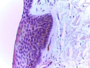 Acanthotic squamous epithelium with adequate cell maturation, epithelial melanosis in the basal layer, and isolated melanophages in the stroma. Note the absence of melanocytic proliferation (hematoxylin-eosin, original magnification ×400).