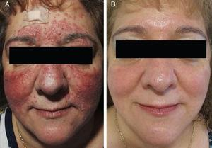 A, Increase in number of papules and pustules during conventional treatment. B, Appearance 8 weeks after finishing treatment with oral azithromycin.