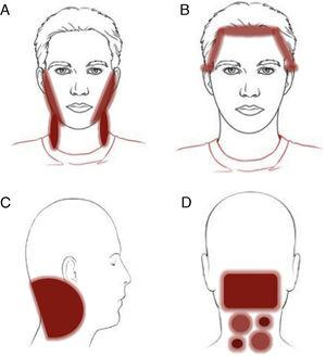 Clinical patterns of allergic contact dermatitis affecting the scalp. A, Rinse-off pattern: eczematous plaques on the sides of the face (preauricular and mandibular) and neck; B, C, and D, pattern along the hairline. B, Forehead and area above the ears. C, Occipital and retroauricular area.