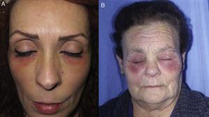 Allergic contact dermatitis caused by eye drops. A, Eczematous plaques mainly affecting the lower eyelids and cheeks. B, The upper eyelids may also be involved.