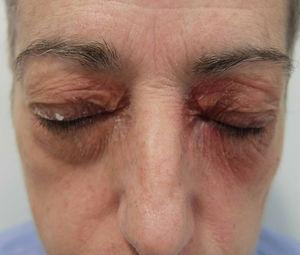 Contact dermatitis caused by eye shadow (contour pattern).