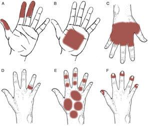 Clinical patterns of allergic contact dermatitis affecting the hands. A, Pincer grip pattern. B, Palmar grasp pattern. C, Apron pattern. D, Ring pattern. E, Glove pattern. F, Periungual pattern.