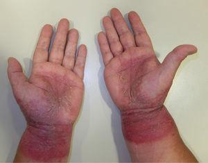 Palmar grasp pattern. Note the involvement of the wrists indicating allergic contact dermatitis.