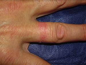 Ring pattern in a patient with irritant contact dermatitis.