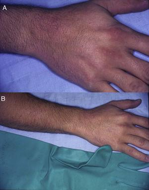 Allergic contact dermatitis with a glove pattern. A and B. Eczematous plaques arranged in patches affecting the dorsum of the right hand and forearm in a patient with allergic contact dermatitis caused by thiuram in rubber gloves.