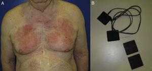 Allergic contact dermatitis with a geographic pattern caused by allergy to acrylates in the adhesive on transcutaneous electrical nerve stimulation patches. A, Eczematous plaques that mimic the shape of the patches. B, Transcutaneous electrical nerve stimulation patches.