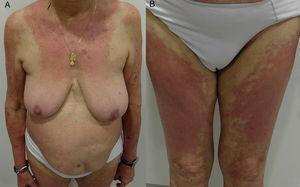Textile pattern allergic contact dermatitis. A, Eczematous plaques on the internal surface of the arms and the forearms. Involvement of the intermammary area sparing the area covered by the patient's bra (cups and straps). B, Involvement of both thighs.