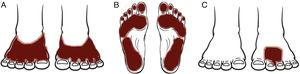 Clinical patterns of allergic contact dermatitis of the feet. A, Shoe pattern. B, Sole pattern. C, Localized pattern.