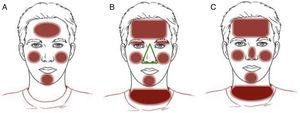 Clinical patterns of allergic contact dermatitis affecting the face. A, Bilateral patchy pattern. B, Airborne pattern. C, Photoallergic pattern.
