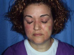 Airborne allergic contact dermatitis. Note the involvement of the eyelids, nasolabial folds, and, to a lesser extent, the neck. The tip of the nose is not involved (beak sign).