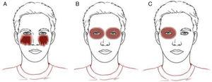 Clinical patterns of allergic contact dermatitis affecting the eyelids. A, Drip pattern; B, Contour pattern. C, Unilateral pattern.