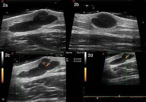 High-resolution ultrasound with a 22-MHz probe (MyLab class C, Esaote) reveals a well-defined polylobulated anechoic image with an internal septum located in the dermis and hypodermis. Positive enhancement was observed. The image measured 11.9mm along its transverse axis (A) and 5.9mm along its longitudinal axis (B). Power Doppler revealed sparse intralesional vascularization with arterial and venous vessels measuring between 0.2 and 0.4mm in diameter (C). Spectral Doppler showed that the arterial vessels had a maximum systolic peak of 2.2cm/s (D).