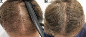Man aged 28 years with androgenetic alopecia treated with dutasteride 0.5mg/d and minoxidil 5% applied nightly. A, Pretreatment. B, 12 months after start of treatment.