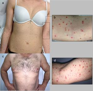 clinical presentation of PLEVA in patient 1 (a-b) and 2 (c-d) with erythematous, scaly and crusted papules and small plaques on the trunk and extremities.