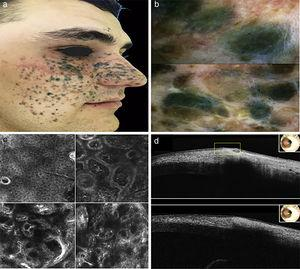 a) Clinical aspect of pigmented lesion b) Dermoscopic features c) RCM in the top left corner: spinous-granular layer of epidermis. In the top right corner: dermo-epidermal junction and upper dermis. In the bottom left corner: upper dermis. In the bottom right corner. Reticular dermis d) OTC images.