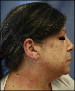 Acute eczema after application of hair dye. The areas affected include the upper eyelid, ear, and neck.