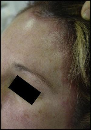 Acute eczema on the forehead and hairline after application of hair dye.