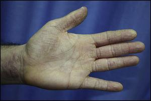 Chronic hyperkeratotic eczema affecting the palm, palmar surface of the fingers, and anterior surface of the wrist in a hairdresser with positive results to paraphenylenediamine and thiuram in patch tests.