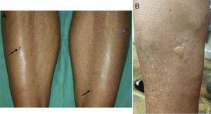 A, Patient 4: small blisters on healthy skin on the anterior aspect of both legs (black arrows) and secondary erosion (blue arrow). B, Patient 1: multiple blisters of various sizes grouped on the lateral aspect of the left leg.