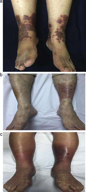 Case 1, a 61 yo female patient with (a) bilateral erythematous-purpuric plaques in lower limbs. (b) Case 3, a 78 yo male patient with unilateral, erythematous, purpuric plaque in posterior right lower limb. (c) Case 4, a 88 yo female patient with bilateral, erythematous, purpuric plaques in lower limbs.