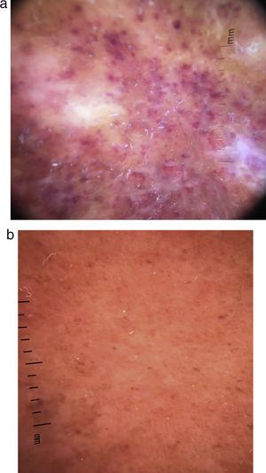 (a) Case 1 histology: diffuse infiltration of eosinophils dispersed and invading necrotized superficial blood vessels. (b) Case 2 histology: fibrinoid necrosis of superficial blood vessels surrounded by eosinophils.