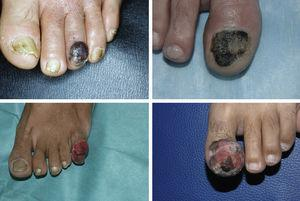 Example of 4 patients with subungual melanoma with advanced-stage lesions at diagnosis at our dermatology department.