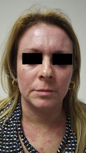 Erythema and edema on the face and neck at the initiation of treatment with itraconazole.