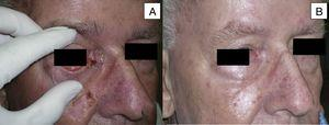 Man aged 73 years with sclerodermiform basal cell carcinoma measuring 3×3cm on the medial canthus (A). A partial response was observed after 6 months of treatment (B) (patient 6 in Table 1).