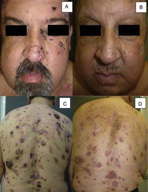 Man aged 51 years affected by Gorlin syndrome with multiple basal cell carcinomas (more than 30) (A and C). A partial response was achieved after 12 months of treatment (B and D) (patient 16 in Table 1).