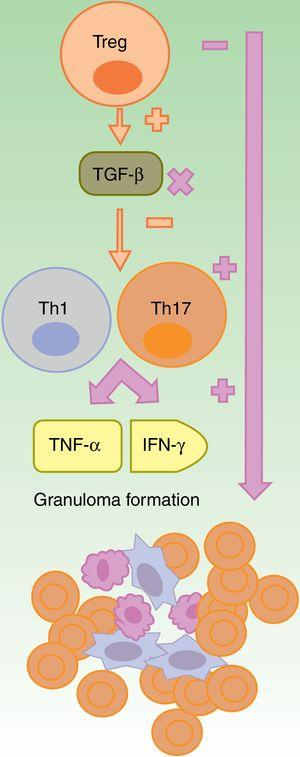 Formation of sterile granulomas during therapy with anti-TNF-α agents. The anti-TNF-α agents are partially effective, in general, in granulomatous diseases such as Crohn disease or sarcoidosis. It is suggested that this is due to an imbalance caused by their use, with an increase in Th17 cell function. Among this class, etanercept causes granulomatous reactions most often because, on the one hand only partial blockade of TNF-α occurs and, on the other, TGF-β is not produced thus allowing overproduction of IFN-γ and TNF-α, which are essential for aseptic granuloma development IFN: interferon; TGF: transforming growth factor; Th: T helper cell; TNF tumor necrosis factor; Treg: T regulatory cell;.