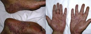 De novo pustular psoriasis with palmoplantar involvement in a patient with hidradenitis suppurativa at 9 months after start of treatment with infliximab.
