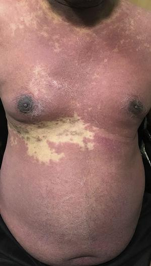 Confluent erythematous maculopapular lesions over the chest and abdomen with sparing of the right T9 dermatome.