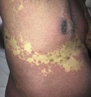 A closer view of the spared site shows hyperpigmentation and scars of healed herpes zoster with sparing of the T9 dermatome by the rash.