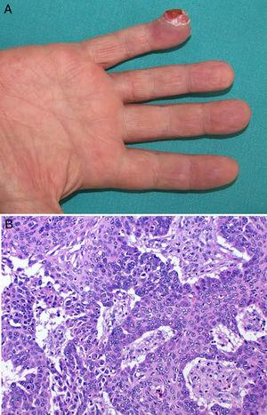 A, Erythematous-pink tumor on the pulp of the little finger of the right hand containing several keratotic areas. B, Dermal proliferation of neoplastic cells with an epithelial appearance, abundant mitotic figures, and nuclear atypia.