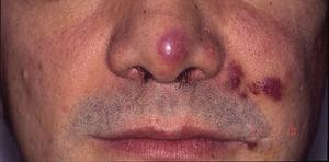 Kaposi sarcoma in a patient with acquired immunodeficiency syndrome. Erythematous-violaceous plaques on the tip of the nose, corner of the mouth, and left cheek.