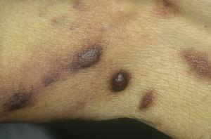 Classic Kaposi sarcoma on the legs. Erythematous brownish plaques on the leg.