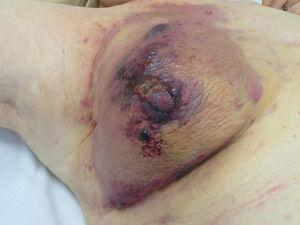 Angiosarcoma. Reddish-violaceous papules and nodules on an erythematous-violaceous plaque on a breast previous irradiated for cancer.