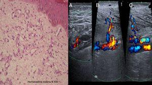 On the left, a histologic image showing the proliferation of capillaries in the deep dermis and papillary dermis, fibrosis, extravasated red blood cells, hemosiderin deposits, and tortuous vessels. On the right, Doppler ultrasound images showing an arteriovenous fistula of the posterior tibial artery (A), anterior tibial artery (B), and arterialized venous flow distal to the anterior tibial vein (C).