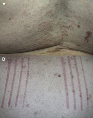 A, Excoriated erythematous papules on the back of a patient. B, Use of the Fric test to confirm dermographism on the back of a patient with prurigo lesions at different stages of progression.