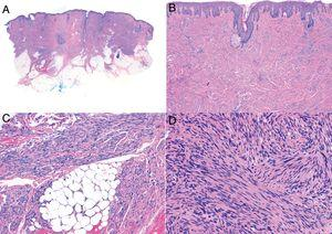 Characteristic histologic features of leiomyosarcoma. A, Panoramic view of a poorly circumscribed dermal tumor invading the subcutaneous tissue. B, Higher-magnification view showing interlacing fascicles of nonuniformly arranged spindle cells in the dermis reminiscent of muscle fibers. C, Invasion of subcutaneous tissue. D, Fascicles of pleomorphic spindle cells intersecting each other at a right angle; mitotic figures.