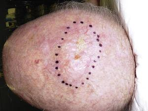Pleomorphic dermal sarcoma on the scalp of an elderly patient. Poorly circumscribed tumor in the form of an indurated plaque.