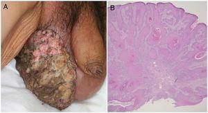A, A giant, dark erythematous, indurated cauliflower-like mass on the scrotum. B, Biopsy of the mass showed squamous cell carcinoma (hematoxylin-eosin, original magnification ×40).
