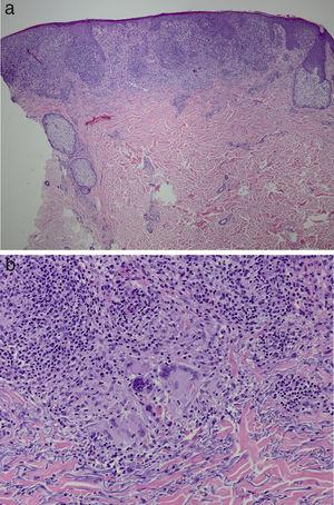 Pathology findings. Epidermal thinning with irregular acanthosis, discrete spongiosis, and parakeratosis. The papillary dermis is replaced almost entirely by granulomas (A) and granulomatous reaction with prominent macrophages and giant cells (B). (Hematoxylin and eosin, x10.).