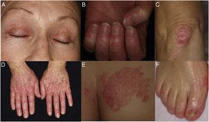 A, Periorbital heliotrope rash. B, Prominent periungual telangiectases. C, Erythematous, scaly plaque on the knee. D, Erythematous, scaly lesions on the dorsum of the interphalangeal and metacarpophalangeal joints. E, Erythematous, scaly plaque on the buttocks. F, Erythematous, scaly lesions on the dorsum and lateral aspect of the feet.